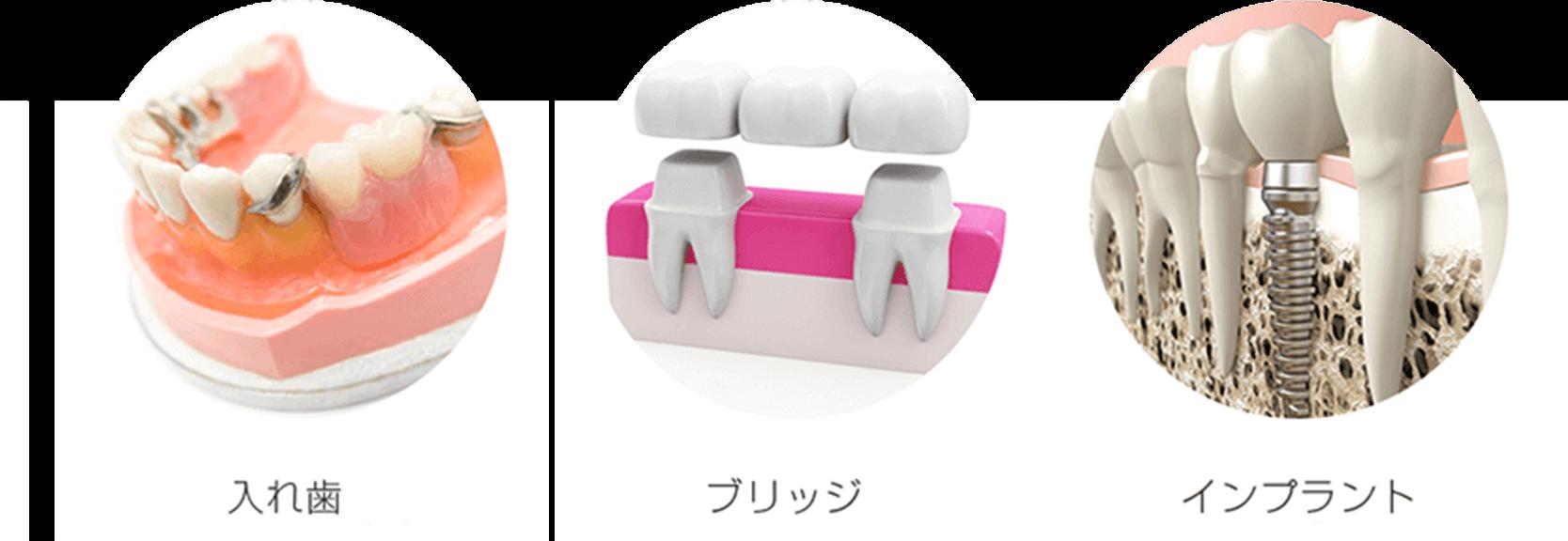 抜けた歯を入れる方法の3つ
