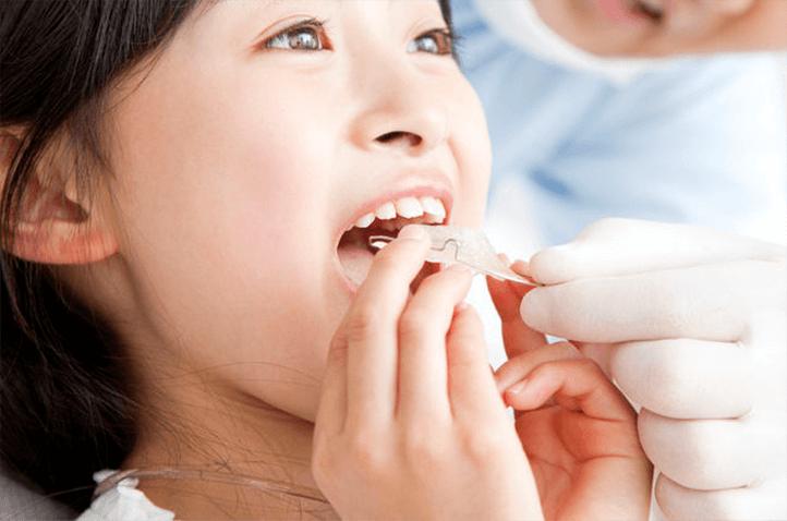 矯正歯科 歯並びをきれいにしたい