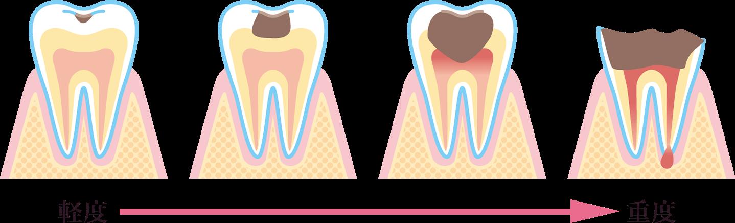 虫歯の進行状況と治療法