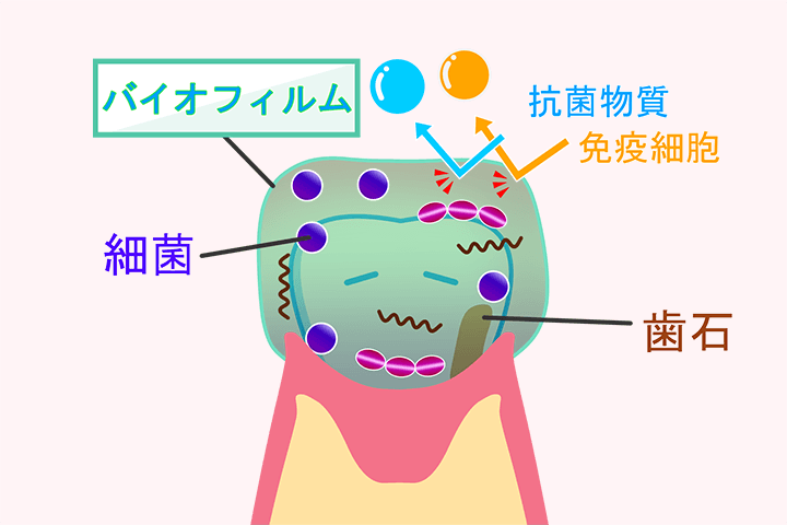 歯垢・歯石・バイオフィルム