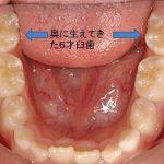 歯の矯正っていつから始める?